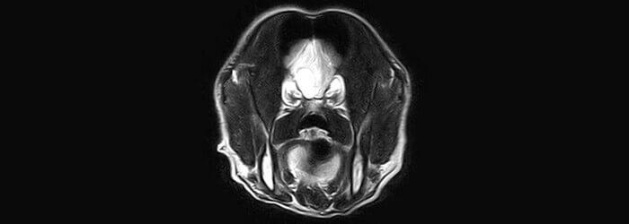 Badanie głowy