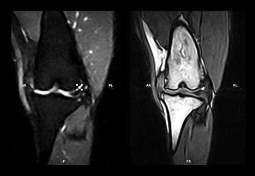 Badanie kości i stawów