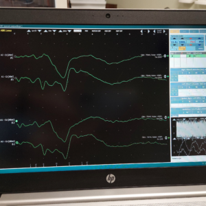 audiogram - badanie słuchu